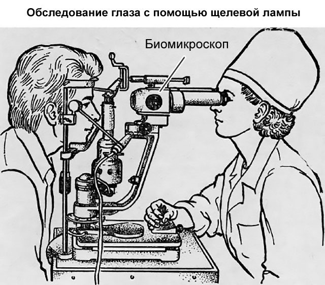 обследование глаза с помощью щелевой лампы после расширения зрачка