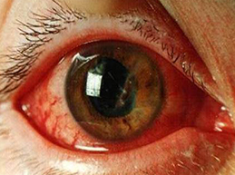Кровоизлияние в глазу: виды, причины, симптомы и лечение