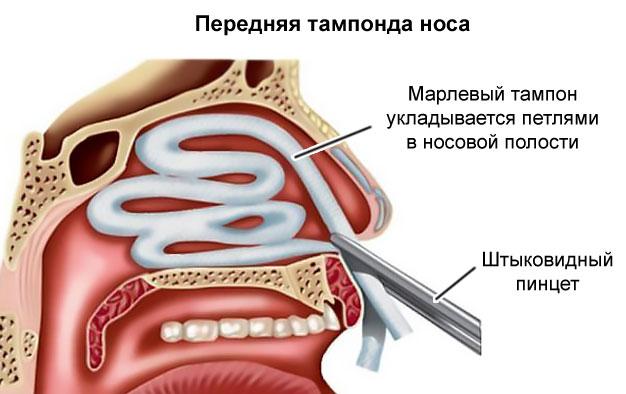 передняя тампонда носа