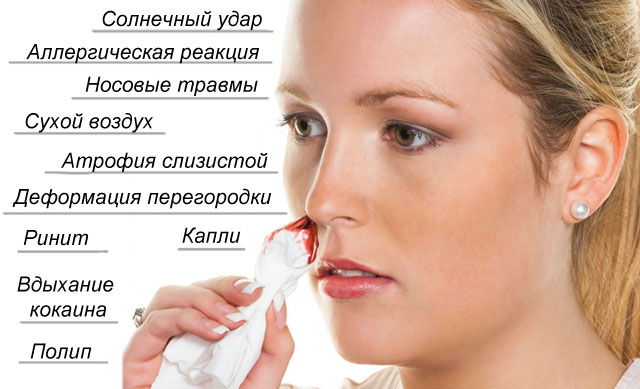 провоцирующие факторы крови из носа