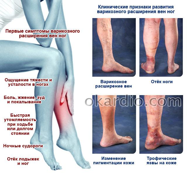 симптомы и клинические признаки варикозного расширения вен ног
