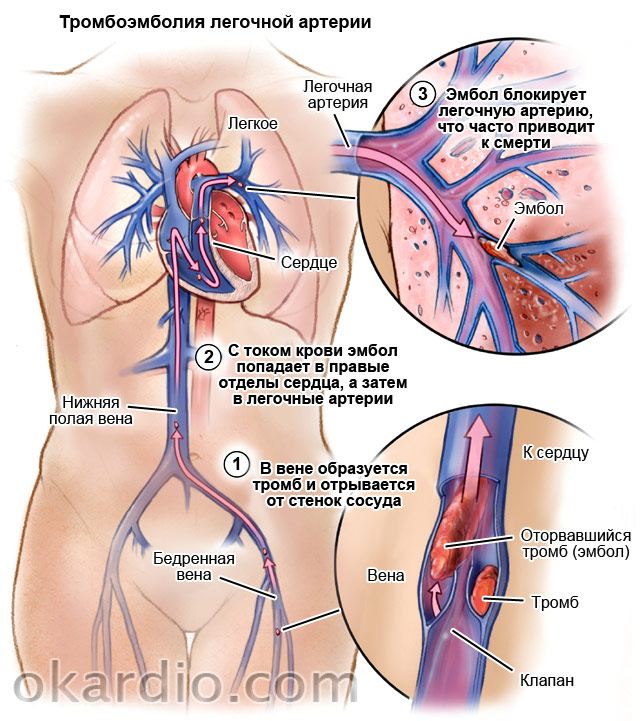 бывает повышенный холестерин в крови