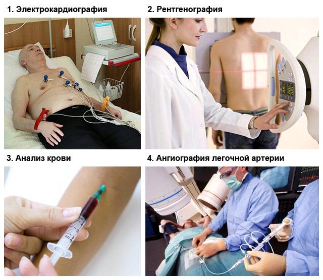 методы диагностики тромбоэмболии легочной артерии