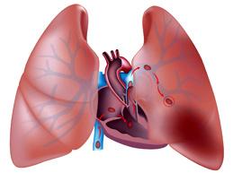 Обзор тромбоэмболии легочной артерии: что это, симптомы и лечение