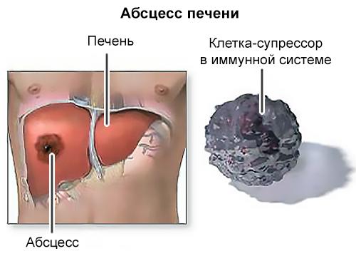 эмболия вследствие абсцесса печени