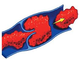 Пять видов эмболии, симптомы, диагностика и лечение патологии