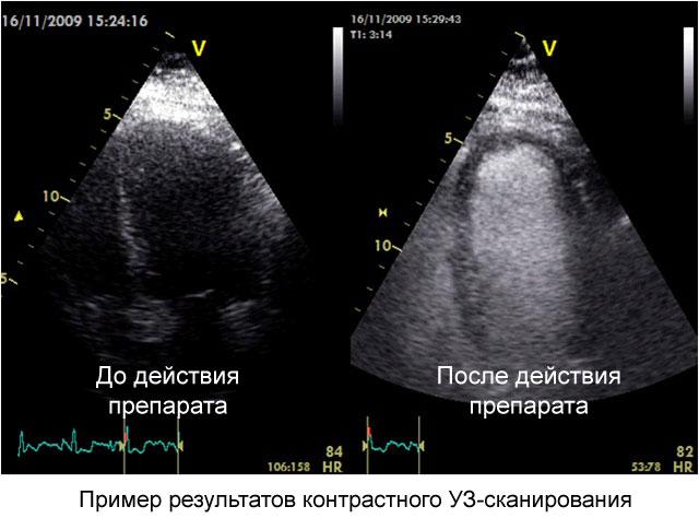пример результатов контрастного УЗ-сканирования сердца