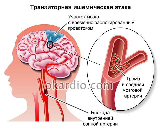 Причины диагностика и лечение предынсультного состояния