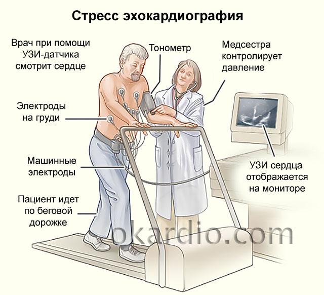 стресс ЭхоКГ (тредмил-тест)