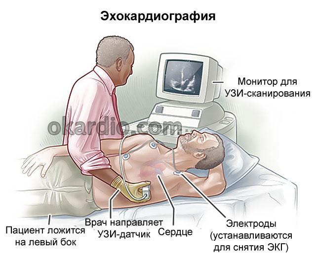 Стресс эхокардиография: что это такое, показания, виды процедуры