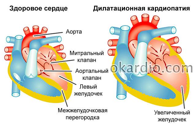 дилатационная кардиопатия