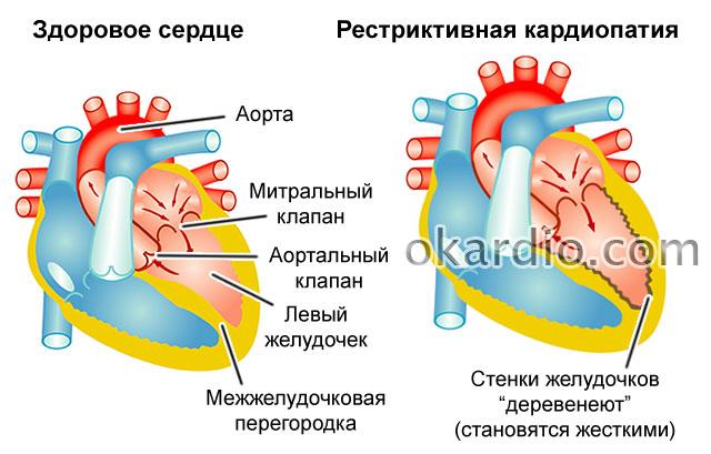 рестриктивная кардиопатия