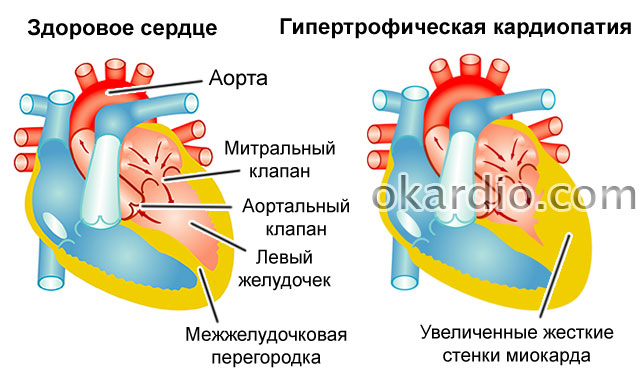 гипертрофическая кардиопатия