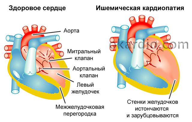 ишемическая кардиопатия