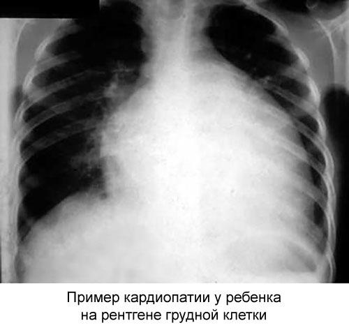 рентген грудной клетки ребенка с функциональной кардиопатией