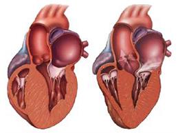 два вида кардиопатии