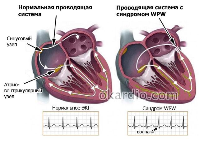 нарушение в проводящей системе сердца при ВПВ