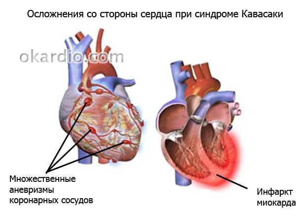 аневризмы коронарных сосудов и инфаркт миокарда при болезни Кавасаки
