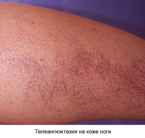 телеангиэктазия на коже ноги