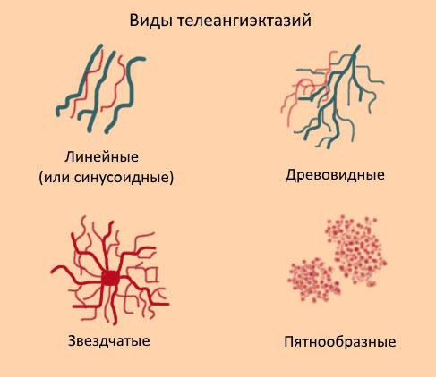 схематическое изображение видов телеангиэктазий