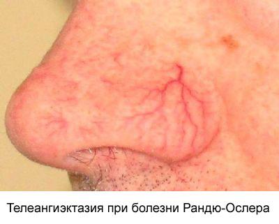 телеангиэктазия при болезни Рандю-Ослера