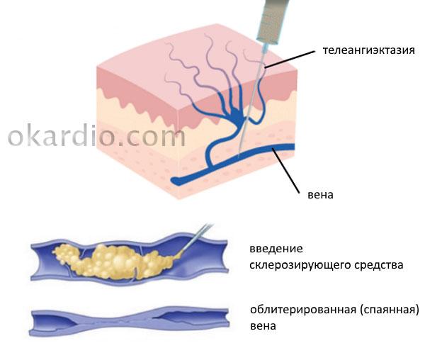 склеротерапия при телеангиэктазии