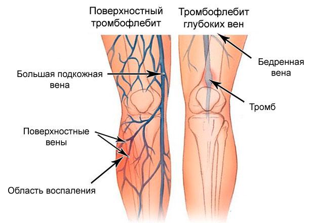 Болят вены на ногах: симптомы, что делать, возможные болезни, прогноз
