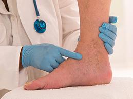 Болит вена на ноге: что делать, возможные причины