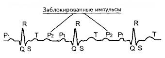 вторая степень АВ блокады (тип Мобитц 2) на ЭКГ