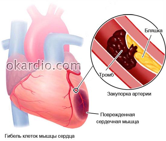 поврежденная вследствие ограничения кровоснабжения мышца сердца