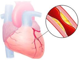 частичное перекрытие коронарной артерии атеросклеротической бляшкой
