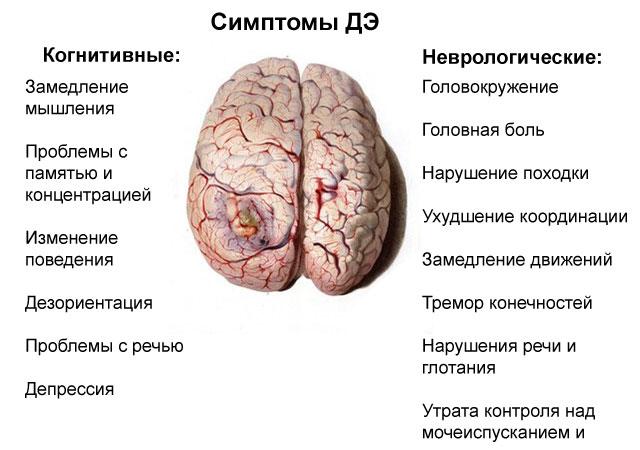 симптомы дисциркуляторной энцефалопатии