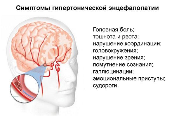 симптомы гипертонической энцефалопатии