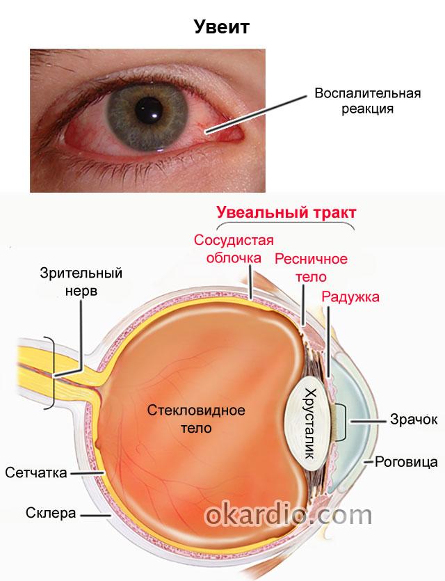 Увеит глаза: виды патологии причины диагностика и лечение