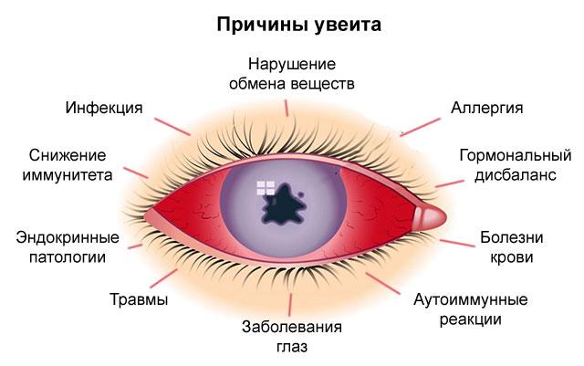 Увеит: что это такое, симптомы и лечение, причины, диагностика