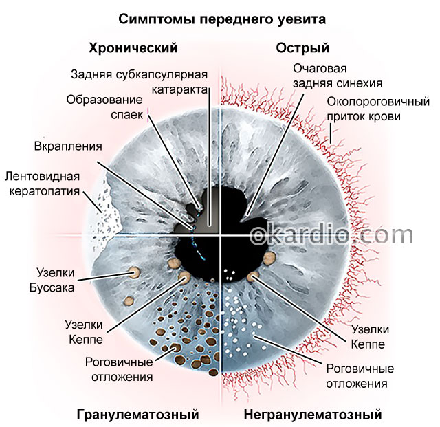видимые симптомы переднего увеита