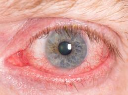 глаз, пораженный увеитом