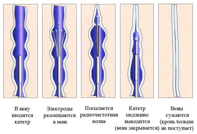 Флебэктомия: что это, показания, плюсы и минусы, ход операции