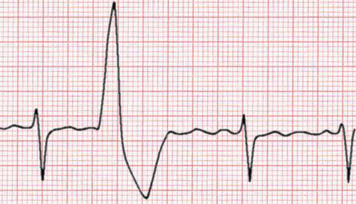 желудочковая эктопия на ЭКГ