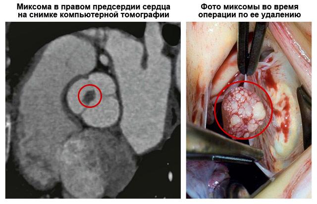 фото миксомы сердца