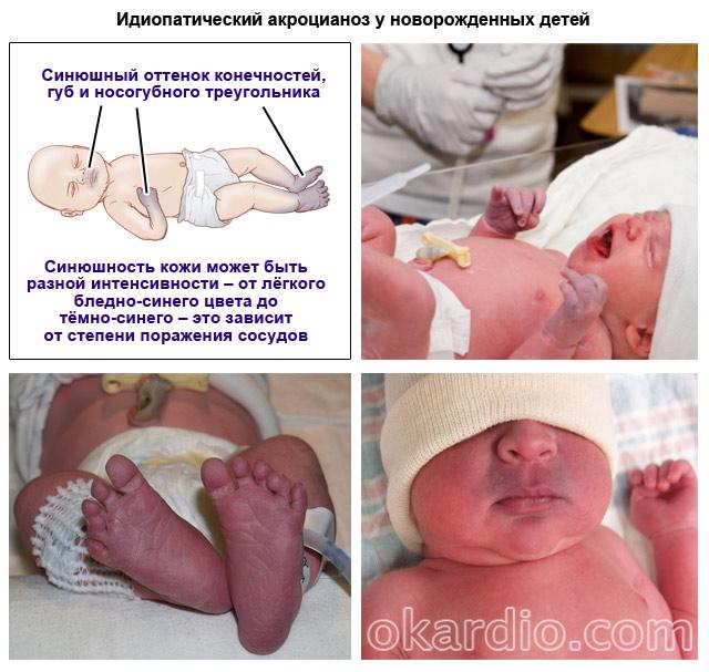 идиопатический акроцианоз у новорожденных детей