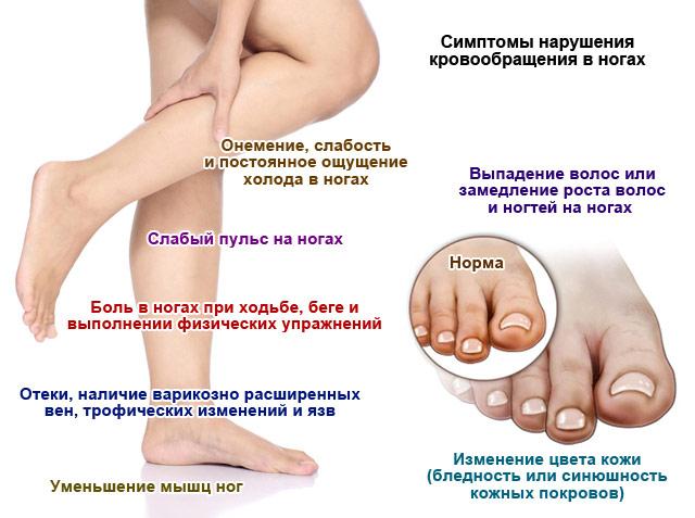 симптомы нарушения кровообращения в ногах