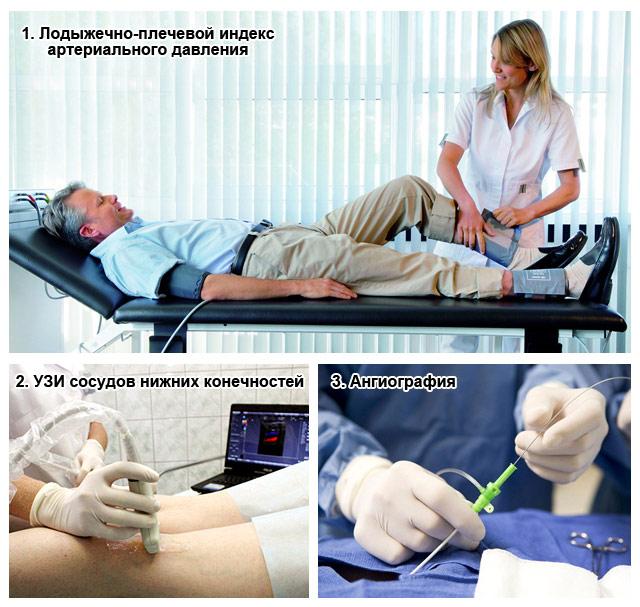 методы диагностики ухудшенного кровообращения в ногах