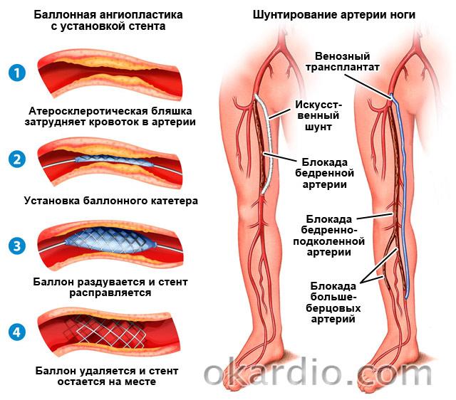 ангиопластика и шунтирование артерии ноги