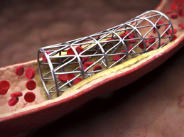 Плохое кровообращение в ногах – что делать: менять образ жизни, препараты