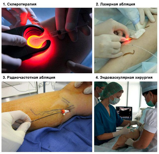 операции при варикозном расширении вен