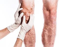 флеболог осматривает вены на ногах пациента