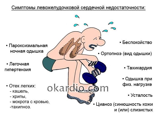 симптомы левожелудочковой сердечной недостаточности