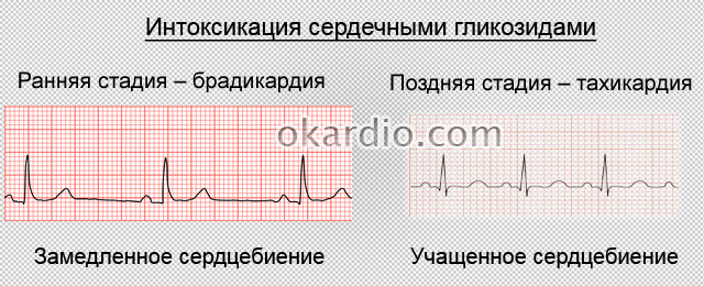 интоксикация сердечными гликозидами