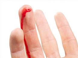 кровотечение из пальца